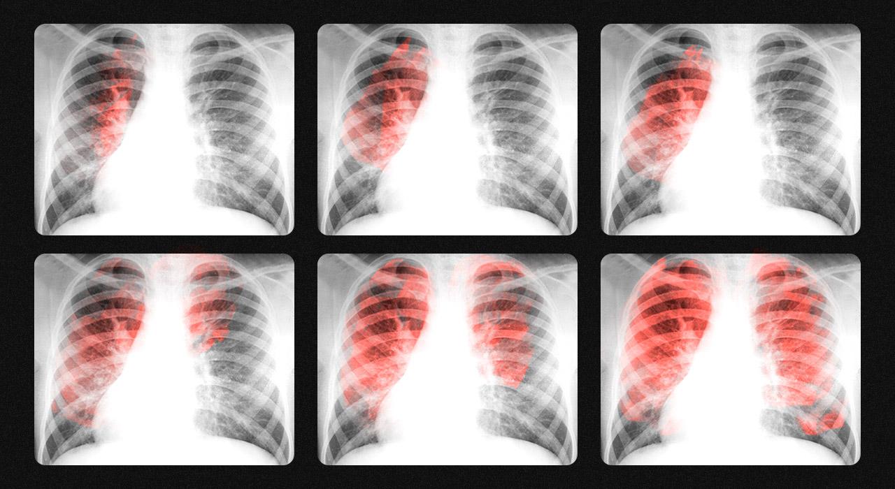 Tiene cura y tratamiento gratuito, pero crecen los contagios y ya hay más de 11 mil enfermos de tuberculosis